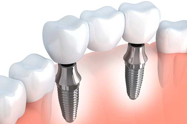 Implant supported bridge illustration